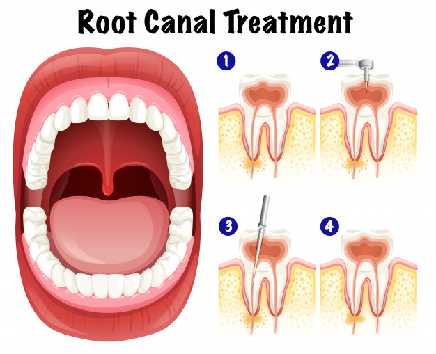 Root Canal Specialist In Pune Root Canal Treatment Dr Pratik
